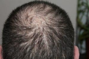 Haarausfall: Die Ursachen & so kannst Du die Alopezie behandeln!